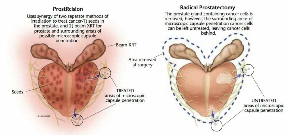 Comparison of ProstRcision and Radical Prostatectomy