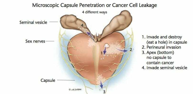 4 Ways for Cancer Leakage to Occur